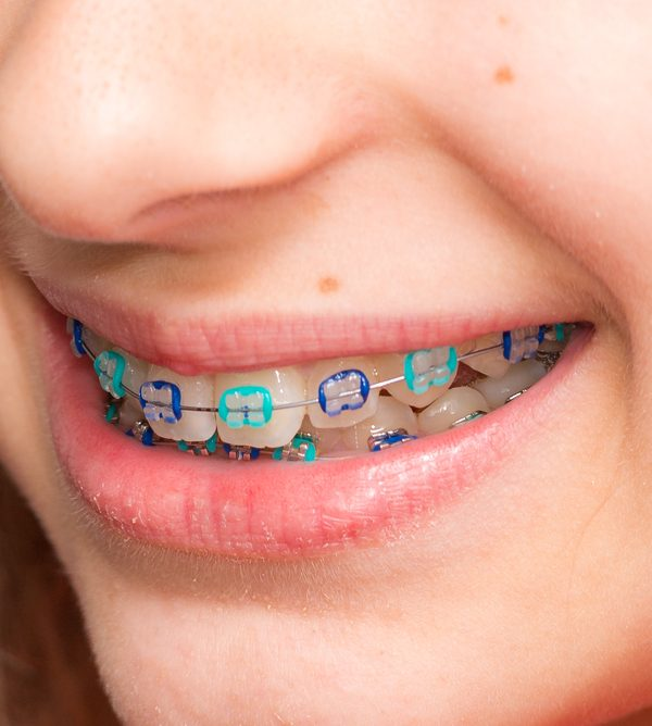 The importance of orthodontics